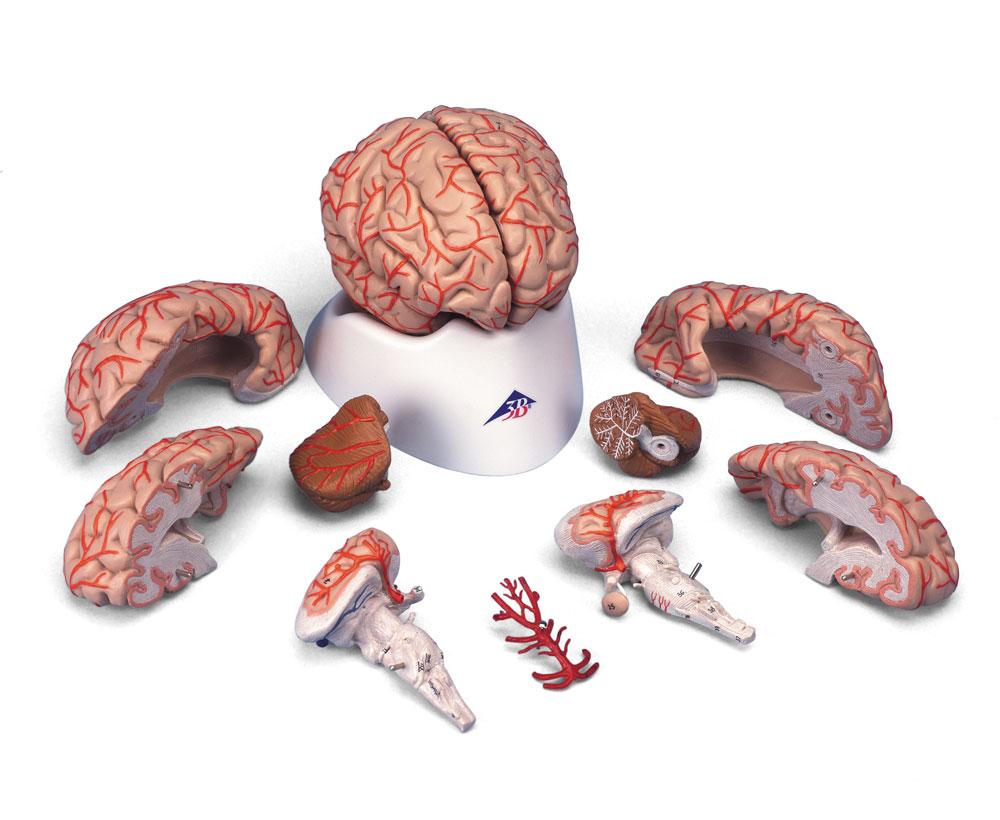 Hjärna med artärer