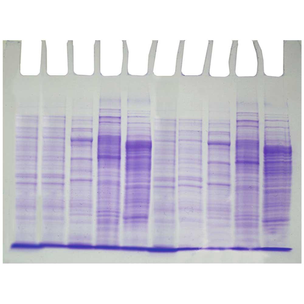 Bakterieprotein fingerprinting - Edvotek